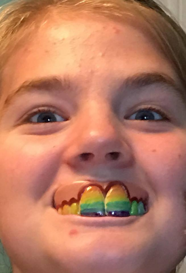 GISHWHES 2016- Rainbow Teeth